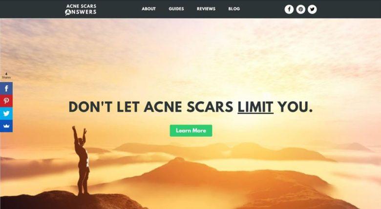 AcneScarsAnswers.com Homepage
